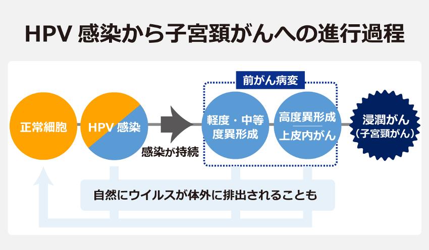 HPV感染から子宮頸がんへの進行過程